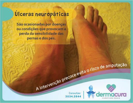 Dermacura - Úlceras neuropáticas
